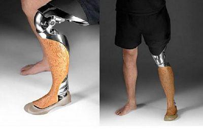 Как работают бионические конечности