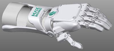 Команда max bionic получила федеральный грант на развитие проекта бионического протеза