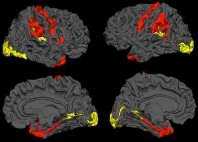 Мозг шизофреников оказался склонен к нормализации