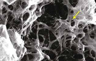 Углеродные нанотрубки увеличивают эффективность иммунотерапии рака